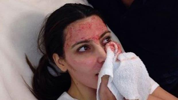 $1,500 Buys a Kim Kardashian Vampire Facial