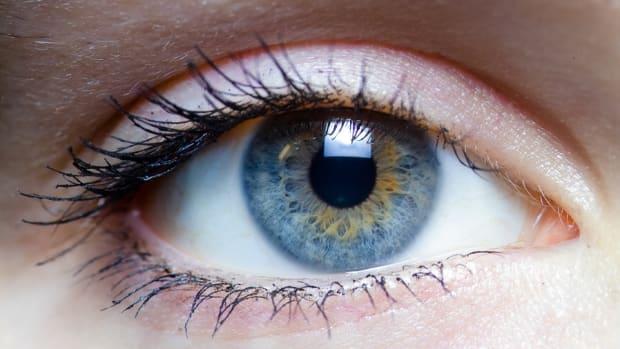 Iridex Eyes BRICs To Laser Ahead