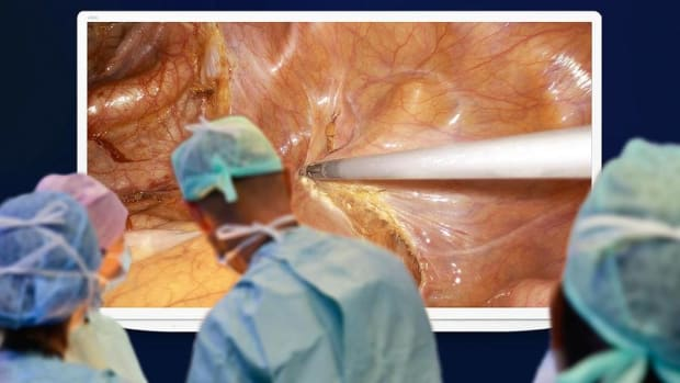 Olympus Teams Up With Sony for Surgical Big Screen TV