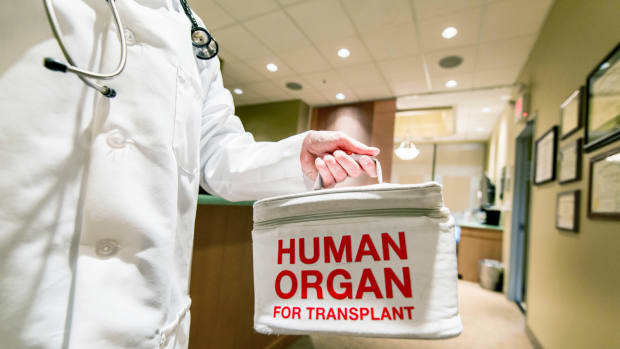 Organ Donor Wait-List Patients Can Test Positive For Cannabis in California