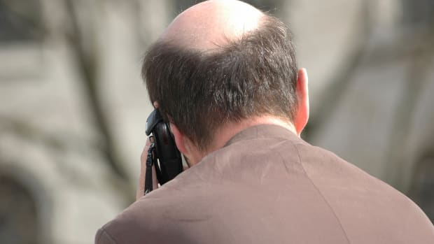 Does Baldness Equal Lost Job Opportunities? The Economic Effects Are Hairy