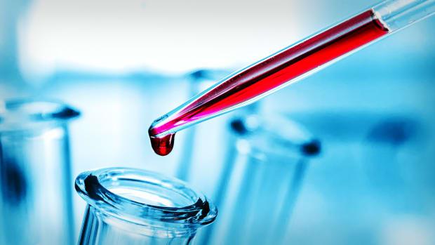 Coronavirus Testing Lead