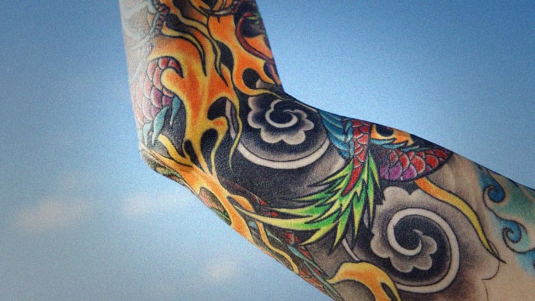 Soliton Soars a Second Day After FDA Approves Tattoo Removal Device