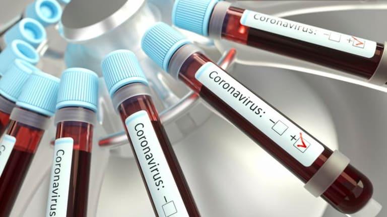 How coronavirus is upsetting the blood supply chain