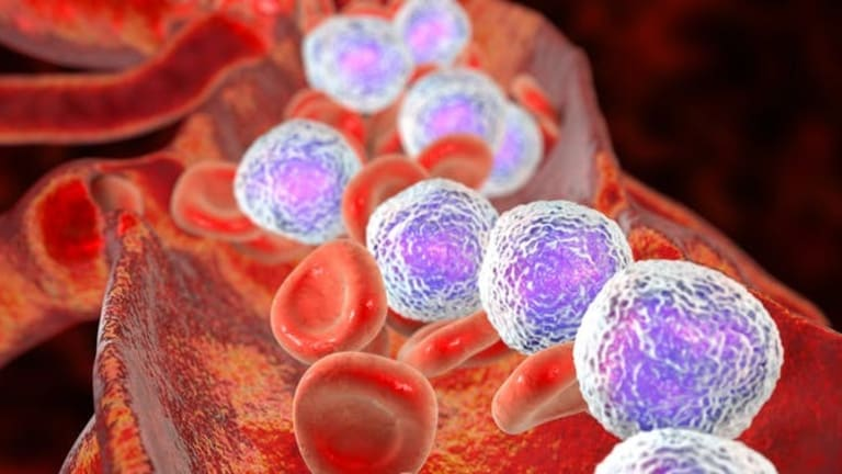 New DNA sequencing technique analyses tumours cell by cell to fight disease