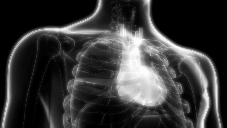 Amarin Dives on Surprise FDA Heart-Drug Review