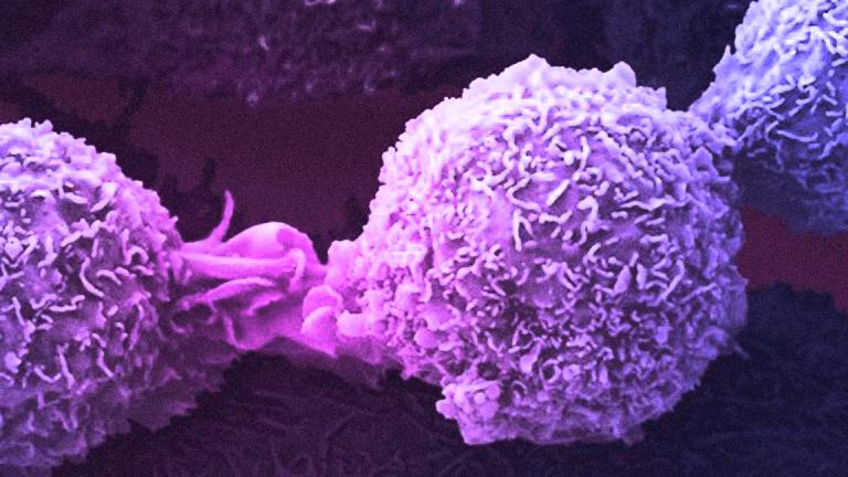 Novartis Secures Prostate Cancer Treatment With Endocyte Deal