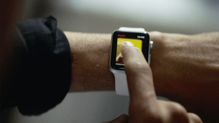 My Apple Watch Sent the Police to My House, But I Still Love It a Year Later