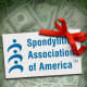 Charity Navigator Score: 68.19 The Spondylitis Association of America, which targets its efforts at a certain form of arthritis that affects the spine and pelvis, is one of the smallest organizations on the list. With revenue of just more than $1.2 million last year (none of which came from the government), the California-based organization might not be able to dispense funds to all sufferers, but the informational materials it provides in addition to the direct assistance to patients multiply its reach significantly for a disease that is rarely fatal but can have important consequences for mobility and quality of life for those affected by it. Photo Credit: SAA/TheStreet Illustration