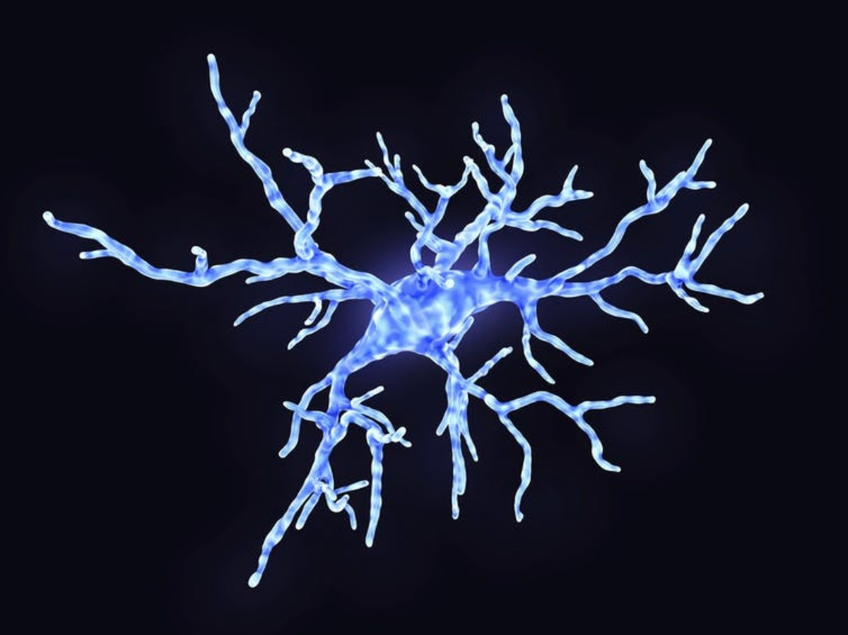 Microglia are specialized immune cells in the brain. In healthy states, they use their arms to test the environment. During an immune response, microglia change shape to engulf pathogens. But they can also damage neurons and their connections that store memory. JUAN GAERTNER/SCIENCE PHOTO LIBRARY / Getty Images