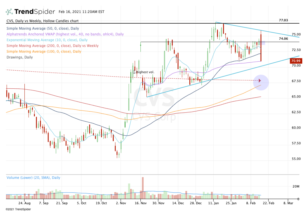 Daily chart of CVS stock.